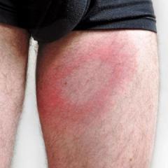 Traitement naturel contre la maladie de Lyme à appliquer dès et sur la piqûre de tique - LMB Lotion - Labosp.com