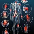 Traitement naturel de l'inflammation chronique et des pathologies liées - IC Complex - Labosp