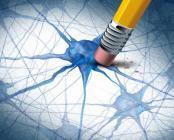 Traitement naturel de la maladie de Parkinson - PKS Support - Labosp.com