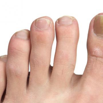 Traitement naturel des mycoses des ongles ou onychomycoses - Onycose - Labosp.com